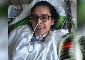 Stany Zjednoczone: pierwszy udany przeszczep obu płuc u pacjentki, która przeszła COVID-19