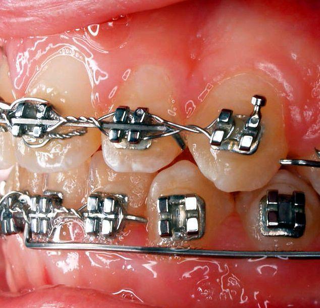 Aparat ortodontyczny założony na stałe
