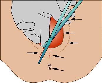 Zabieg episiotomii, czyli nacięcie krocza
