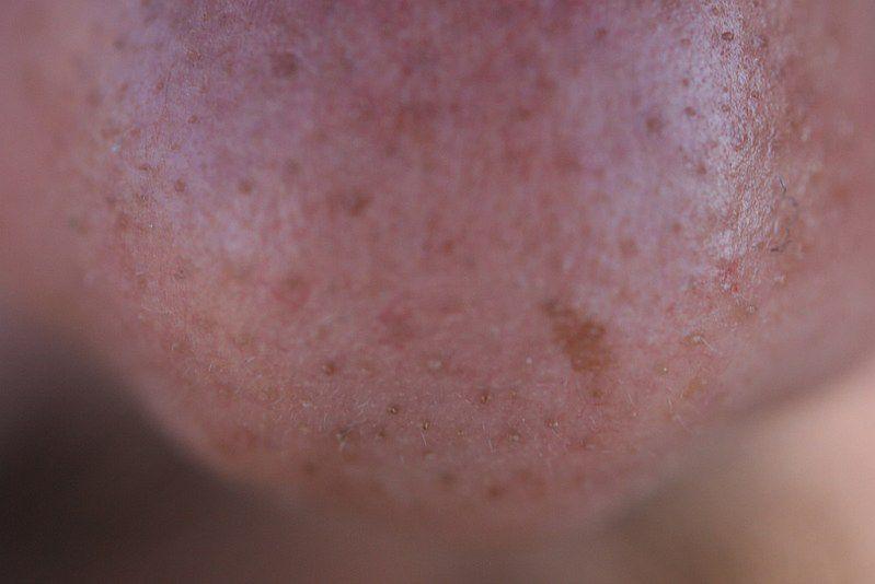 Rak skóry - nieregularny kształt