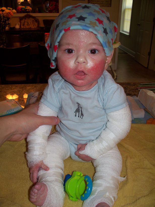 Chłopczyk miał bolesną chorobę skóry