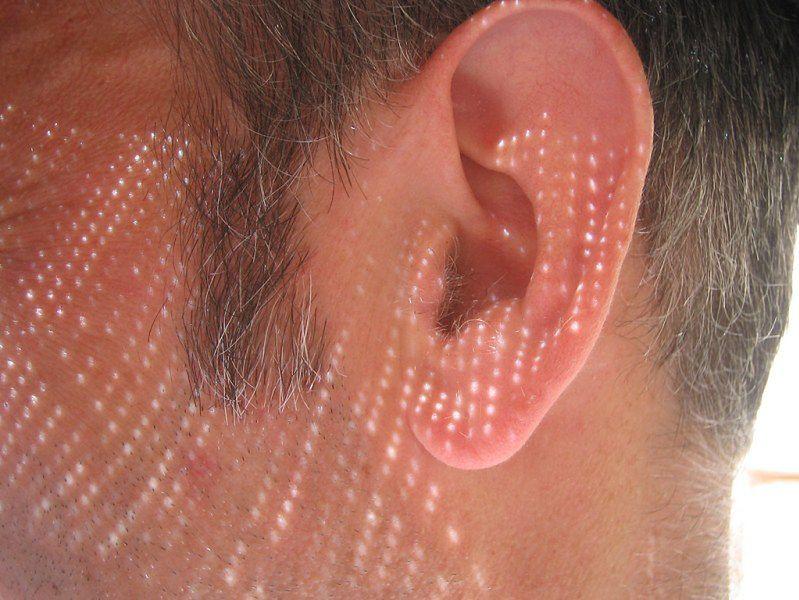Zapalenie ucha - powikłania