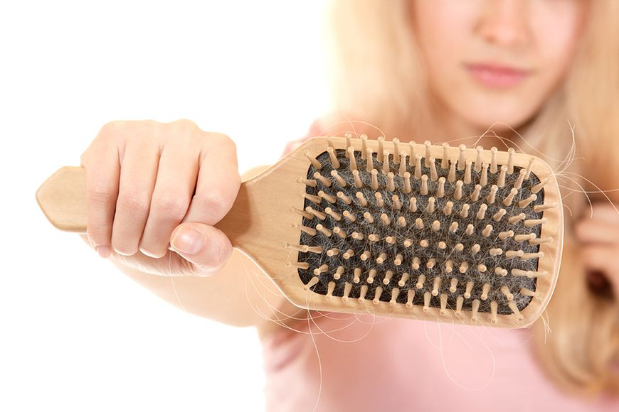 Nadmierne wypadanie włosów