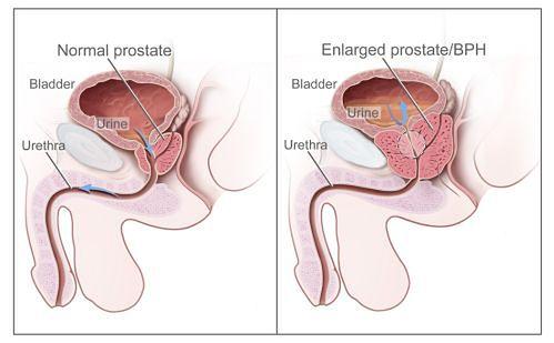 Schemat przerostu prostaty