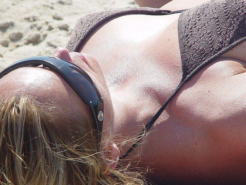 Rak skóry - rogowacenie słoneczne