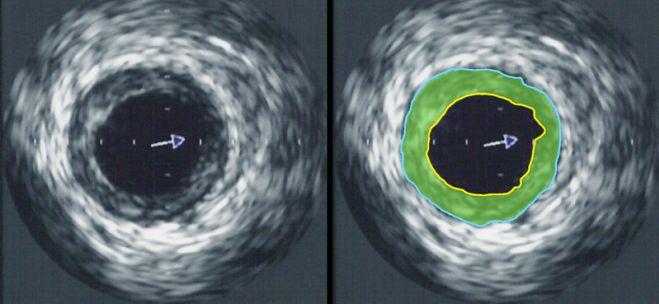 Obraz ultrasonografii wewnątrzwieńcowej