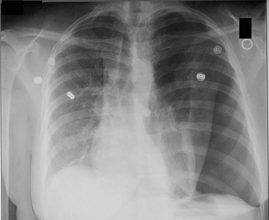Odma płucna na zdjęciu RTG