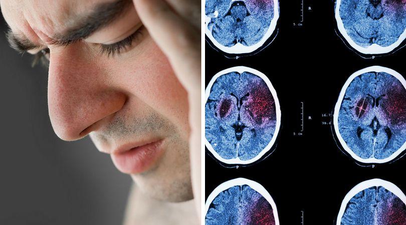 Objawy cichego udaru mogą zwiastować pojawienie się udaru niedokrwiennego