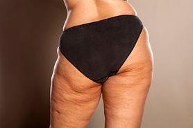 Cellulit – objawy, przyczyny i zwalczanie pomarańczowej skórki