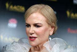 Nicole Kidman próbuje zatrzymać czas. Lekarz wylicza, co poprawiła w twarzy
