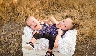 Bliźniaczki syjamskie Callie i Carter mają prawie 2 latka