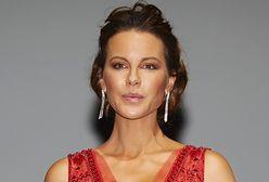 Kate Beckinsale wsparła Chrissy Teigen. Opowiedziała swoją historię