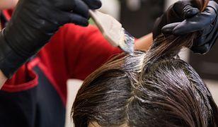 Reakcja alergiczna 19-latki na farbę do włosów