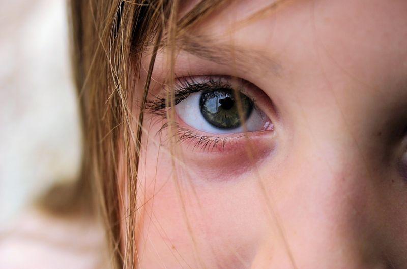 Sposoby na opryszczkę - infekcja oczu