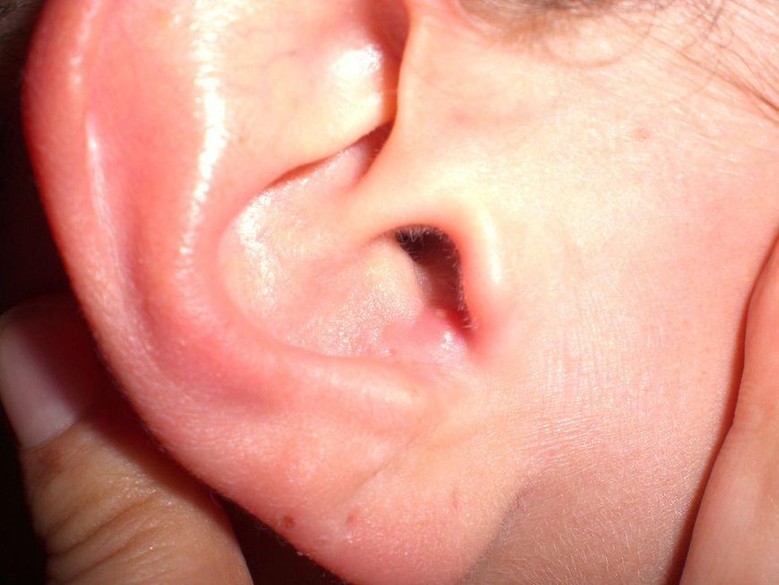Sposoby na opryszczkę - miejsca infekcji