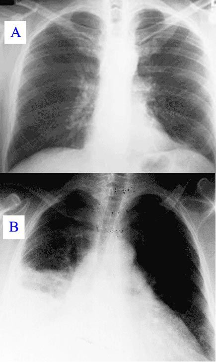 Porównanie zdjęcia płuc zdrowych i z zapaleniem płuc