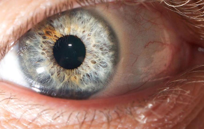 Choroby oczu - zapalenie powiek