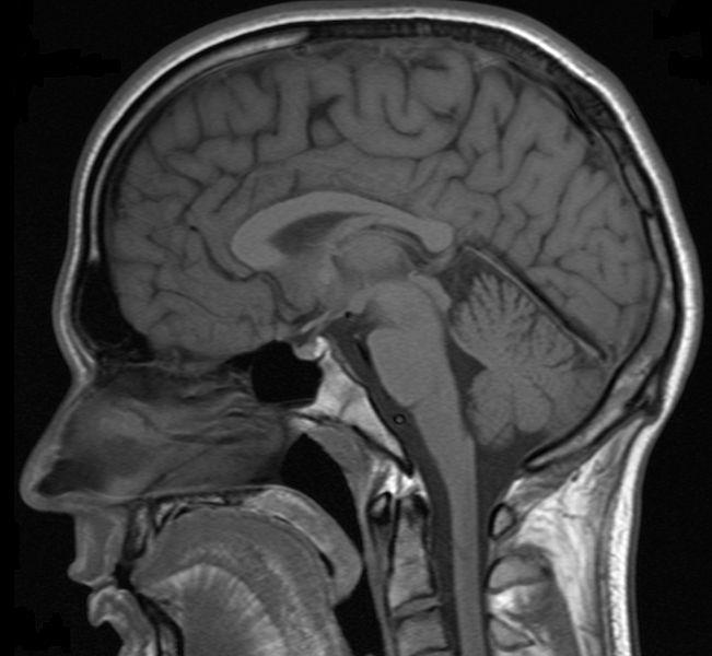 Obraz rezonansu magnetycznego
