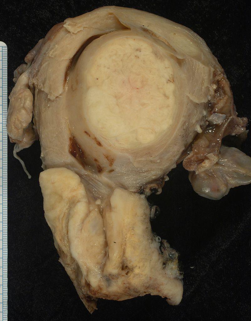 Zdjęcie nowotworu płaskonabłonkowego