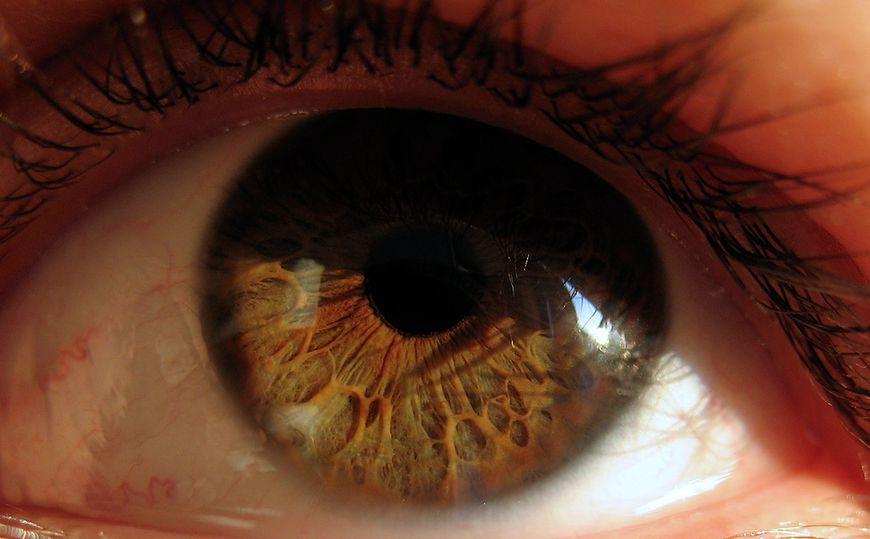 Choroby oczu - oko ludzkie