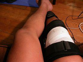 Powszechne urazy stawu kolanowego - czy wiesz, co może ci pomóc złagodzić ból?