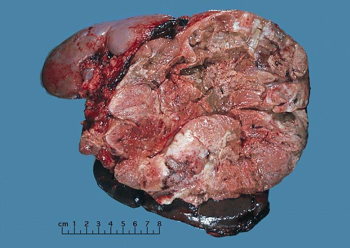 Zdjęcie nowotworu nadnerczy