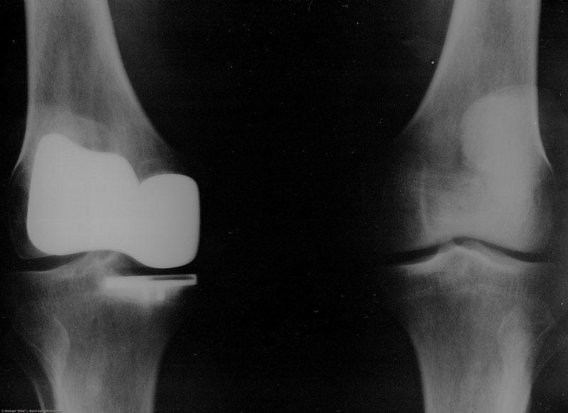 Reumatoidalne zapalenie stawów - diagnostyka