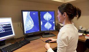 Zachęcają młode kobiety do badań piersi. Kampania ma wpłynąć na kwestię świadomości społecznej