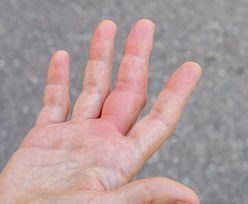 Pojawia się na dłoniach. To objaw chorej wątroby, ostrzega przed jej stłuszczeniem