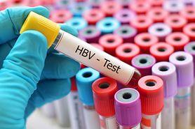 Wirus HBV – czym jest i jakie są objawy zakażenia?