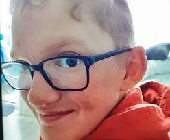 14-latek z okolic Nowego Targu wyszedł z domu i już nie wrócił. Apel o pomoc