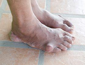 Dna moczanowa - kwas moczowy, przyczyny, rodzaje, objawy, leczenie, dieta