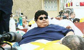Najgrubszy człowiek świata - kim jest, leczenie otyłości olbrzymiej