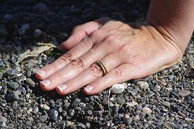 Zwichnięcie ręki - przyczyny, objawy, diagnozowanie, leczenie