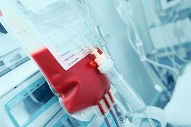 Ostra białaczka szpikowa - leczenie