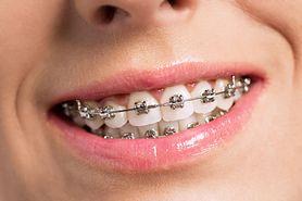 Na aparat ortodontyczny nigdy nie jest za późno