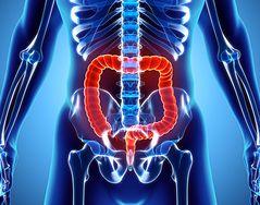 Dieta, która zwiększa ryzyko wystąpienia raka jelita grubego. Uważaj na te produkty