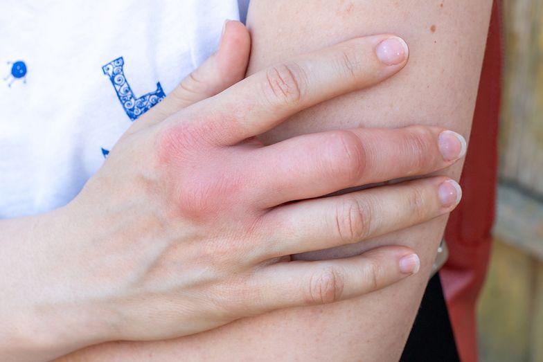 Objaw chorych nerek. Pojawia się na palcach, zazwyczaj rano