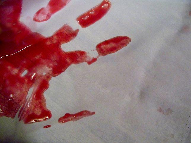 Ojciec zasztyletował syna nożem myśliwskim