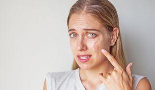 Przez miesiąc smarowała twarz miodem, by pozbyć się trądziku. Oto efekt!