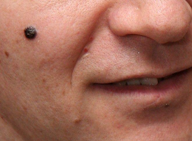 Badania przesiewowe u mężczyzn - diagnostyka raka skóry