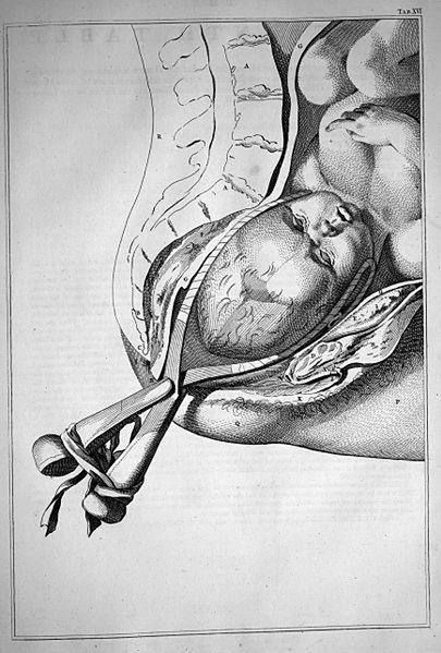 Obraz przedstawiający poród kleszczowy