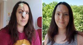 Pryszcz na nosie okazał się rakiem. Wszystko przez brak kremów z filtrem