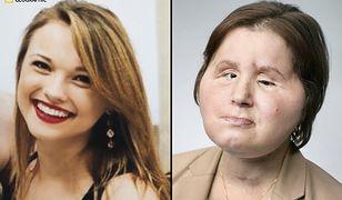 Wygląd Katie przed przeszczepem i po