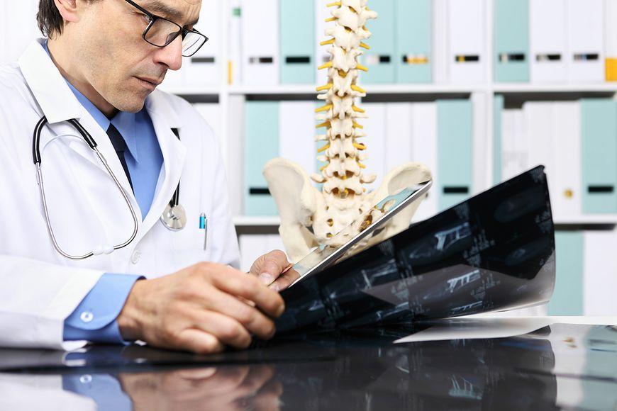 Zdjęcia kręgosłupa są ważne w profilaktyce