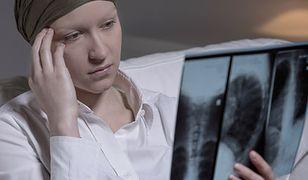 Polisy nowotworowe coraz bardziej popularne w Polsce. Szerszy zakres ubezpieczenia niż NFZ