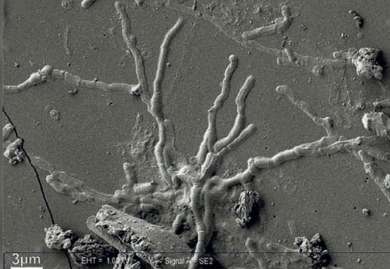 """Sensacja we Włoszech. """"Zeszklony mózg"""" to przełom w archeologii"""