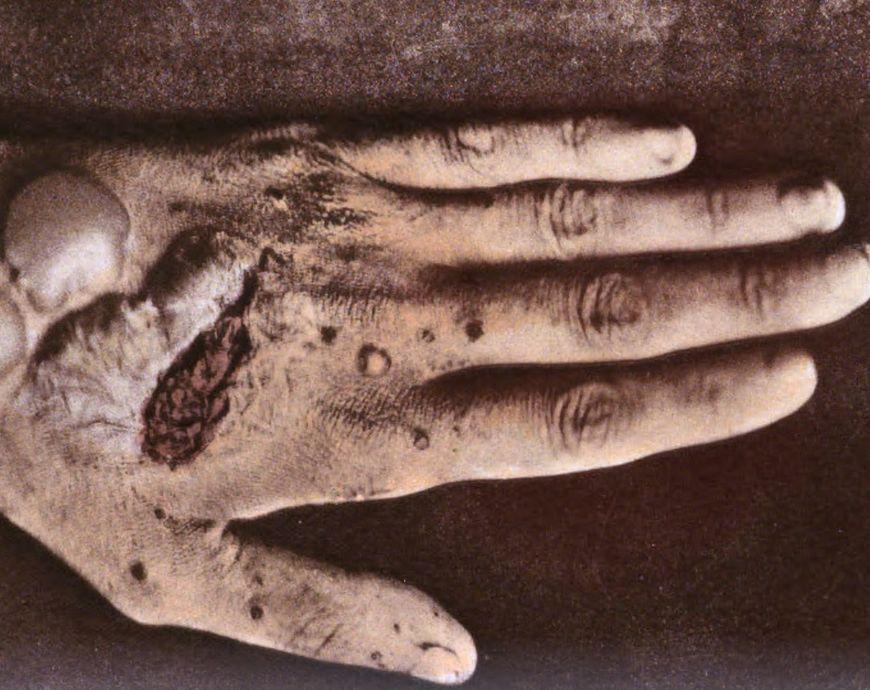 Dłoń ze zmianami skórnymi