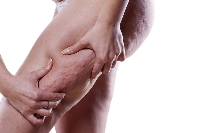 Cellulit jest problemem zarówno medycznym, jak i kosmetycznym.