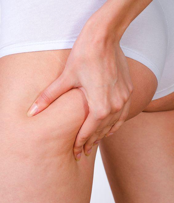 Cellulit to uciążliwy i wstydliwy problem, którego można pozbyć się za pomocą zabiegów medycznych i kosmetycznych.
